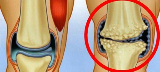 az artritisz és a lábujjak ízületi kezelése ízületi ízületi gyulladások okai