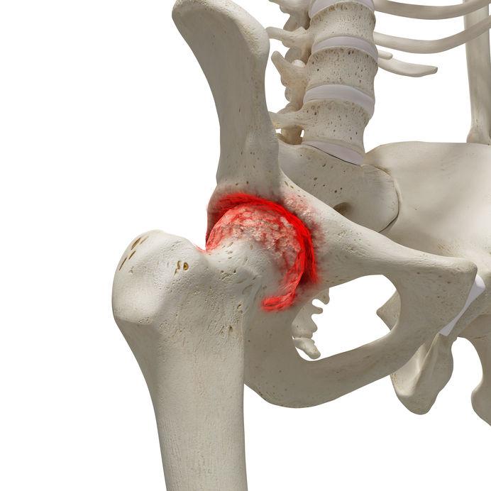 csípőízület osteoporosis kezelése