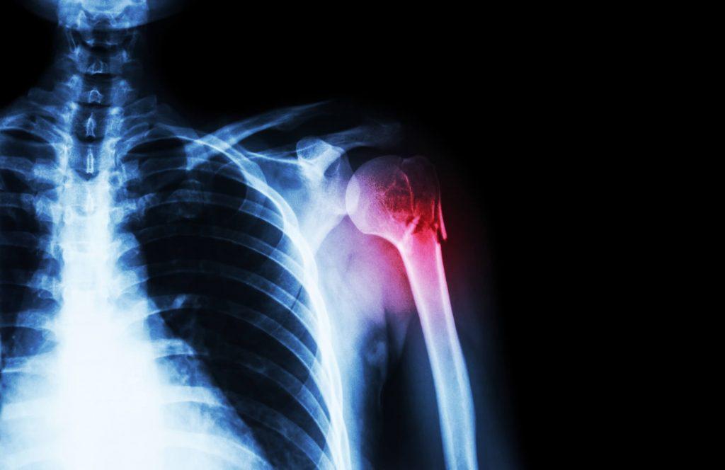 a vállízület hemarthrosisának kezelése éles fájdalom a vállízületben mozgás közben