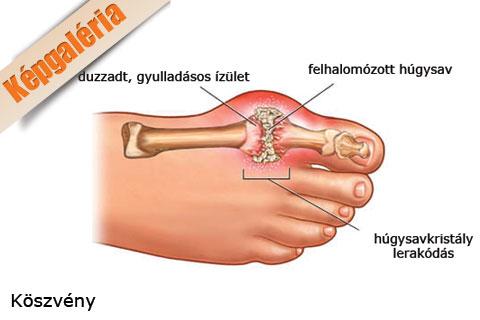 duzzadó ízületi fájdalom a lábujjon ízületi fájdalom kéz sérülés után