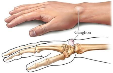 az alsó végtagok ízületi sérülései