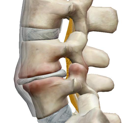 hogyan kezeljük a térd tendinosist milyen ízületi hátfájás