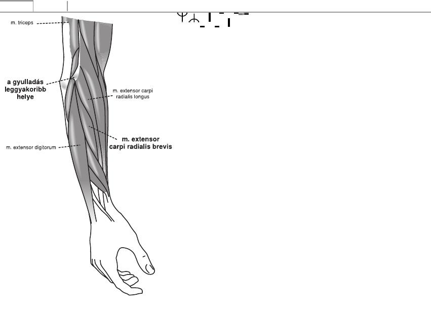 csukló-styloiditis kezelés lábfájdalom neuralgia