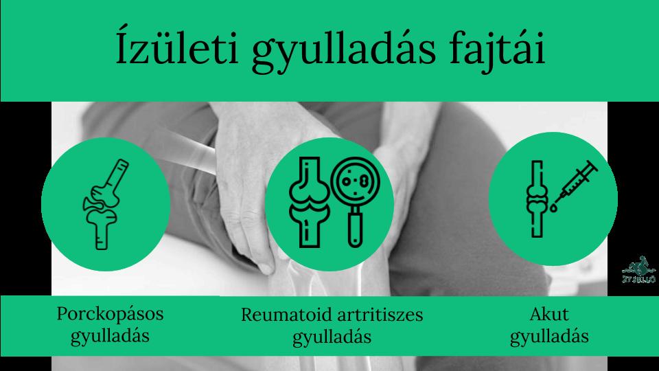 Artritisz (az ízületek gyulladásos megbetegedése) - EgészségKalauz