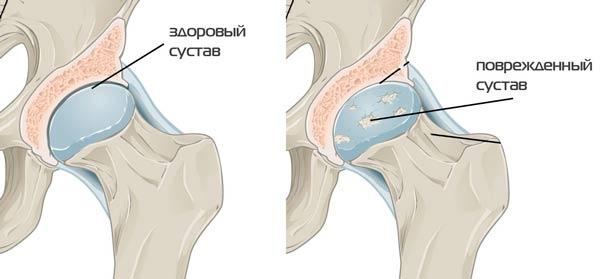 vállízület osteochondrozis kezelése hogyan kezeljük a vállízület vagy az inak gyulladását
