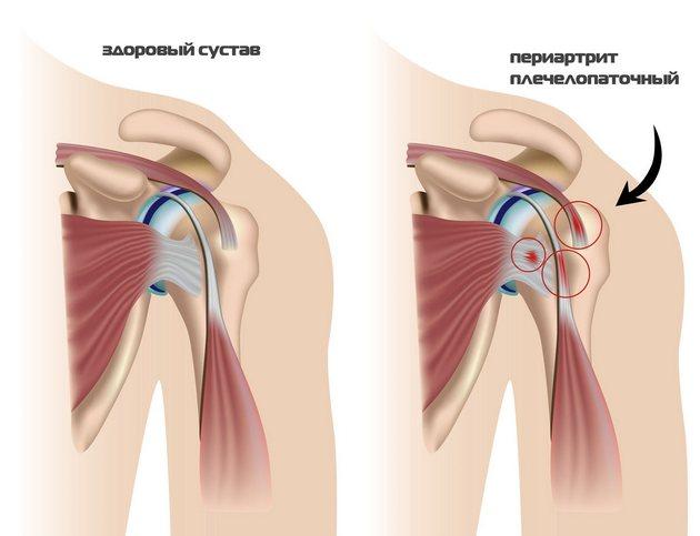 fájdalom válltól könyökig a csípőfájás visszaadja az alsó részét