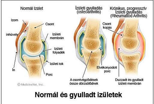 a térd ízületi gyulladásának és ízületi gyulladásának kezelése