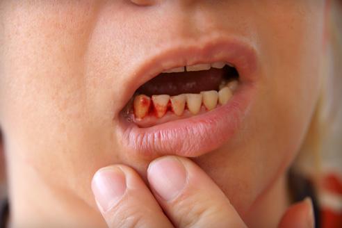 ízületi fájdalom és fogak