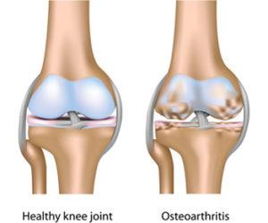 mi a térd artrózisának 1. stádiuma