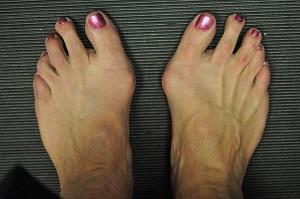 a lábfej lábujjai ízületei