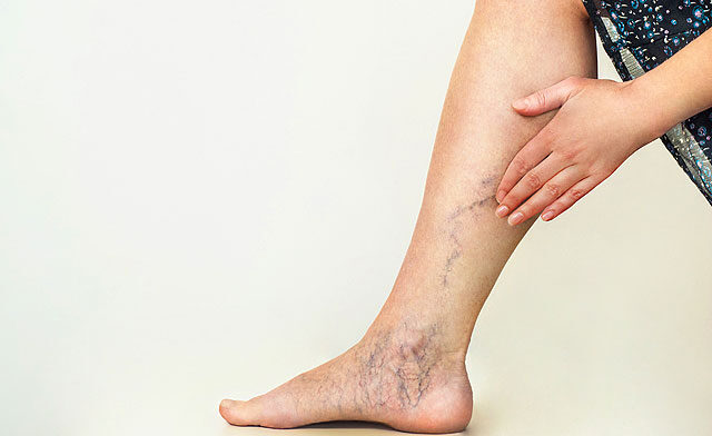 Az égető lábfájdalom okai