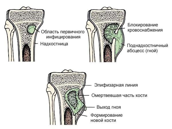 a hosszú séták miatt fájnak a csípőízületek