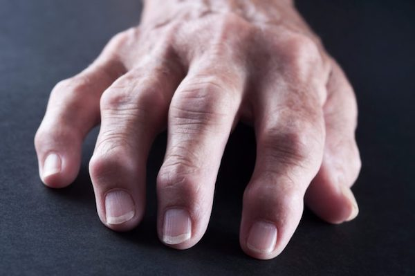 az ízületi fájdalom okának diagnosztizálása