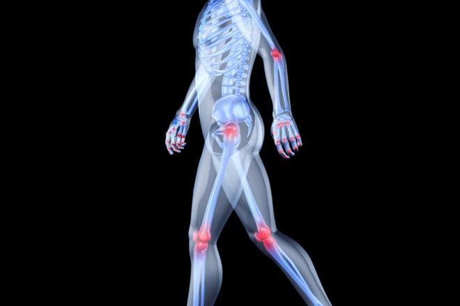 a csípőízület osteochondrozisának kezelésére szolgáló készítmények megnyomja az ízületet, mert fáj
