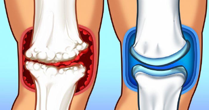 ízületi fájdalom és duzzadt kar ízületi kezelés peptiddel