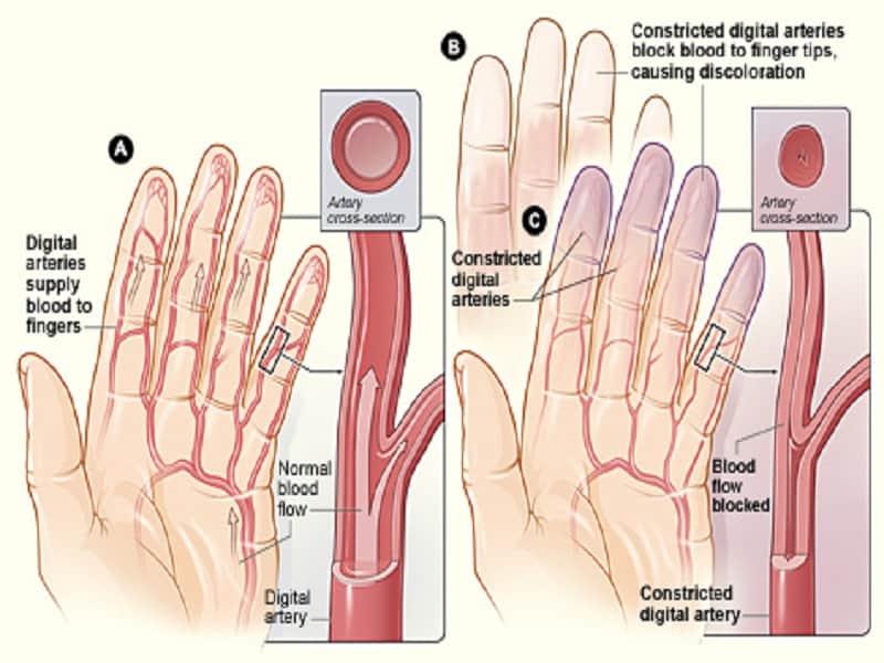 a karok és a lábak ízületei fájdalmas készítmények lehetséges ízületi problémák