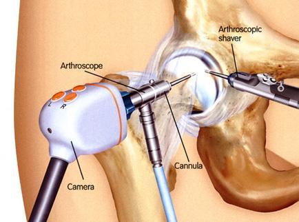 csípőízület artrózisának kezelésére szolgáló gyógyszer artrózis kezelése lapos lábakkal