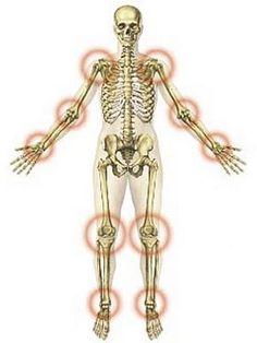 Izom és ízületi fájdalmak – megelőzés és enyhítés | Unizdrav