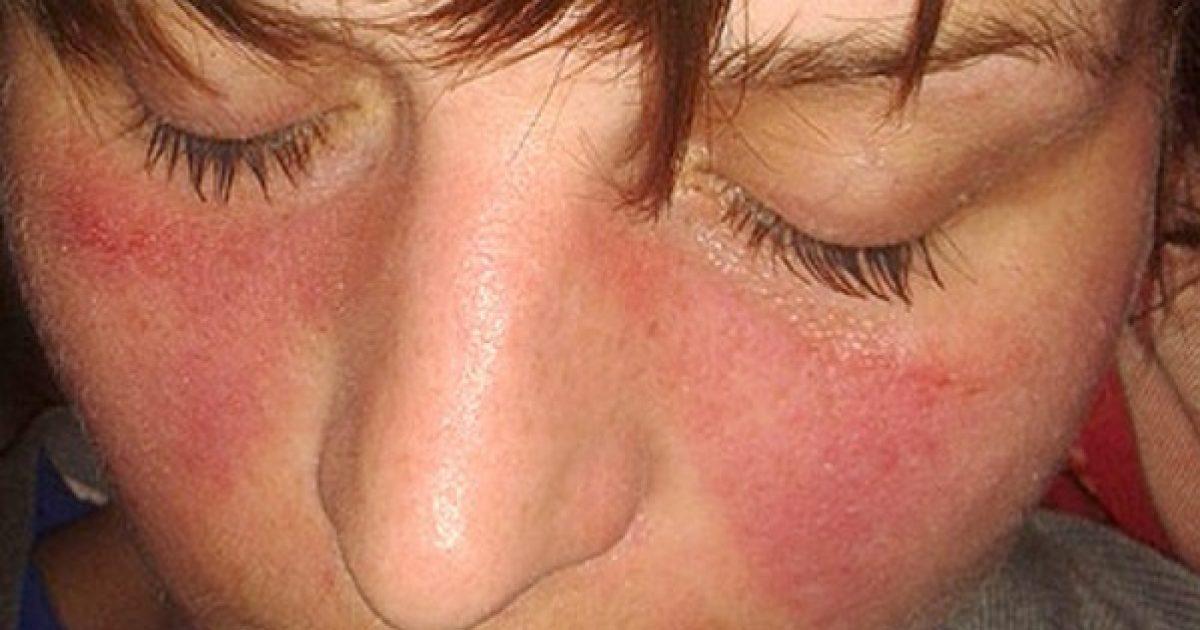 kötőszövet-betegség szindrómák
