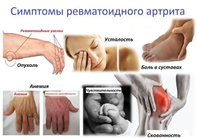 ízületi ízületi gyulladás kezelésére szolgáló gyógyszerek áttekintése