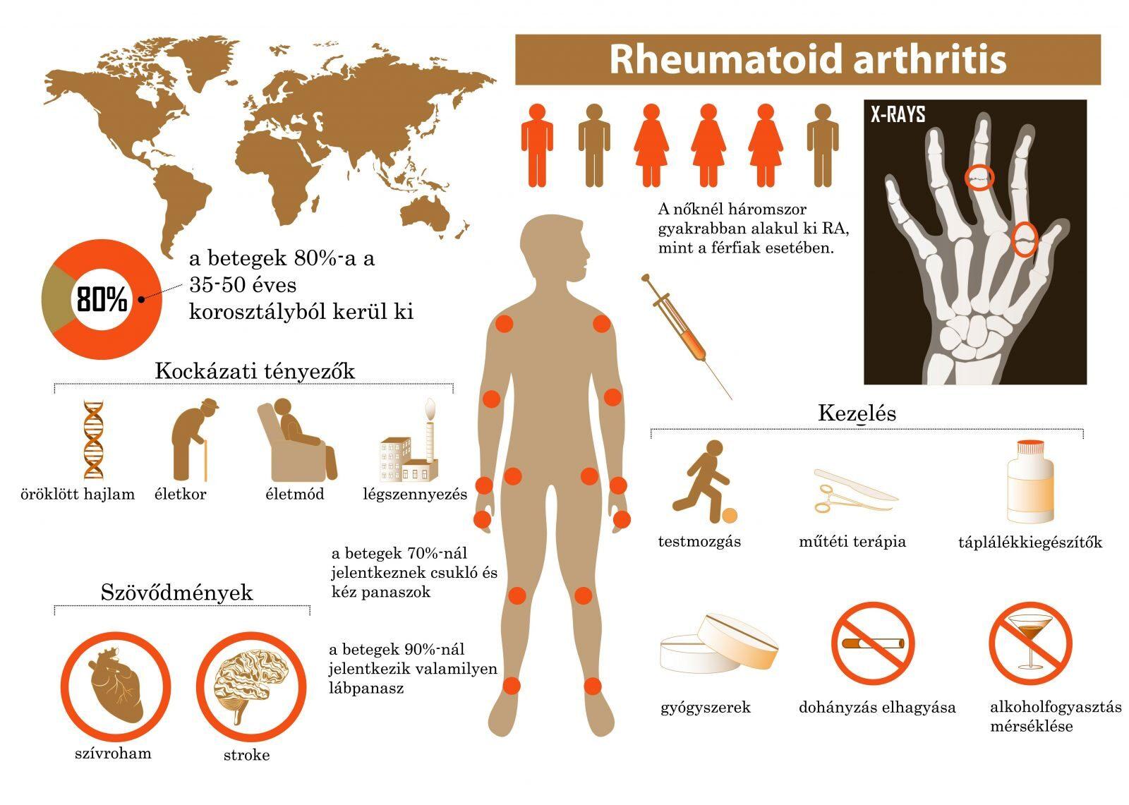 gyulladás az ízületekben és a gerincben ízületek artrózis kezelésére szolgáló módszerek