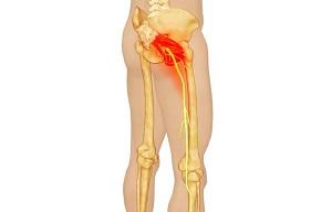 miért csípőízületi fájdalom éjszakai kezelés esetén