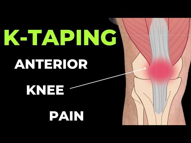 Az 1. fokú térdízületek gonartrózisa - a tünetek és a betegség kezelése