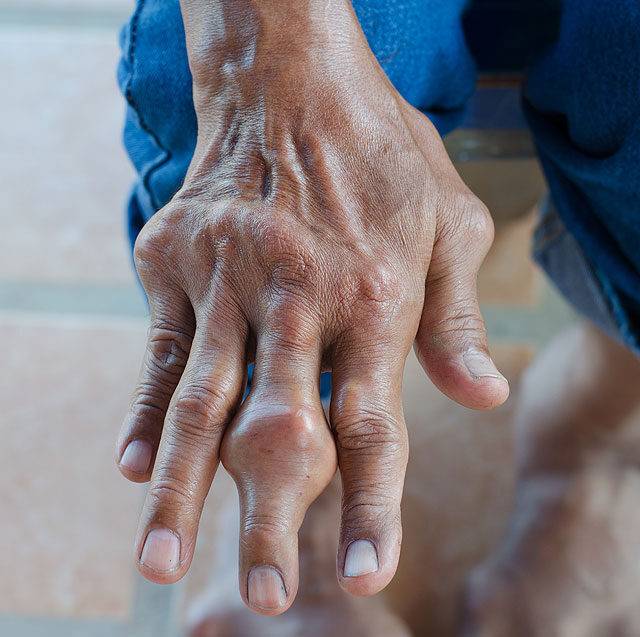 az ujjak ízületei gyulladásosak reumás fájdalom ellen
