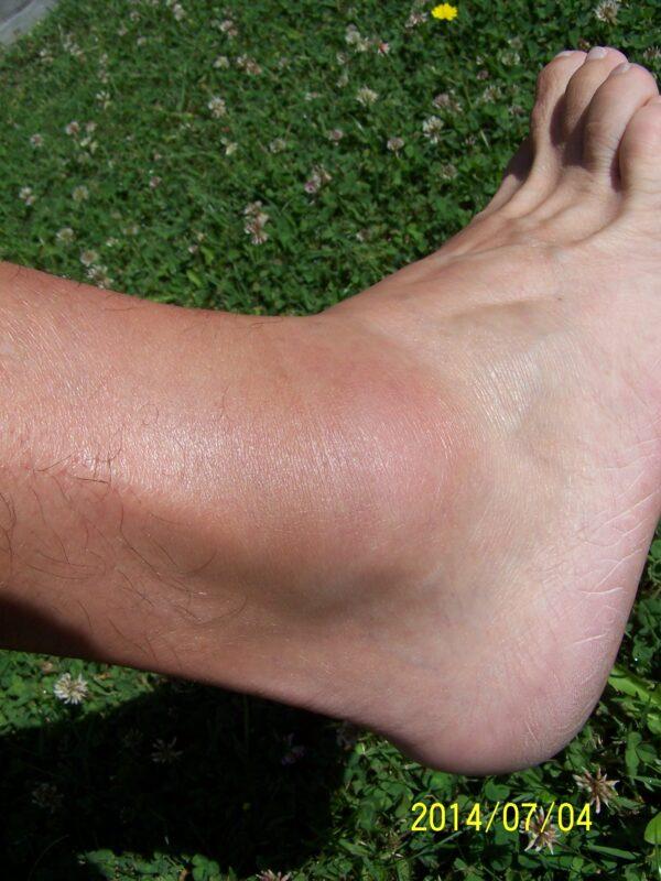fájó és duzzadt bokaízület kezelése