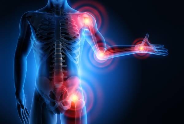 a csípőízület deformáló artrózisa az ízület állandó fájdalmától