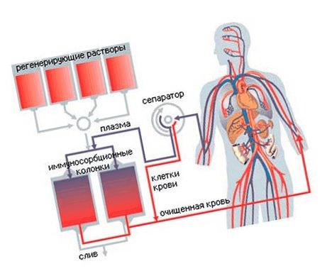 kötőszöveti patológia kezelés nemisil az artrózis kezelésében