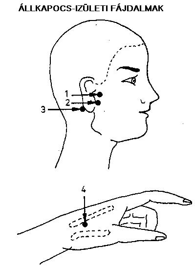 Az állkapocsízület és a fülfájás