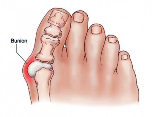kenőcs a nagy lábujj ízületére eszközök ízületek kezelésére