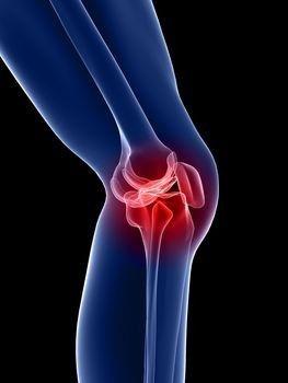 fájdalom a könyökízület benyomásakor futhat térd artrózisával