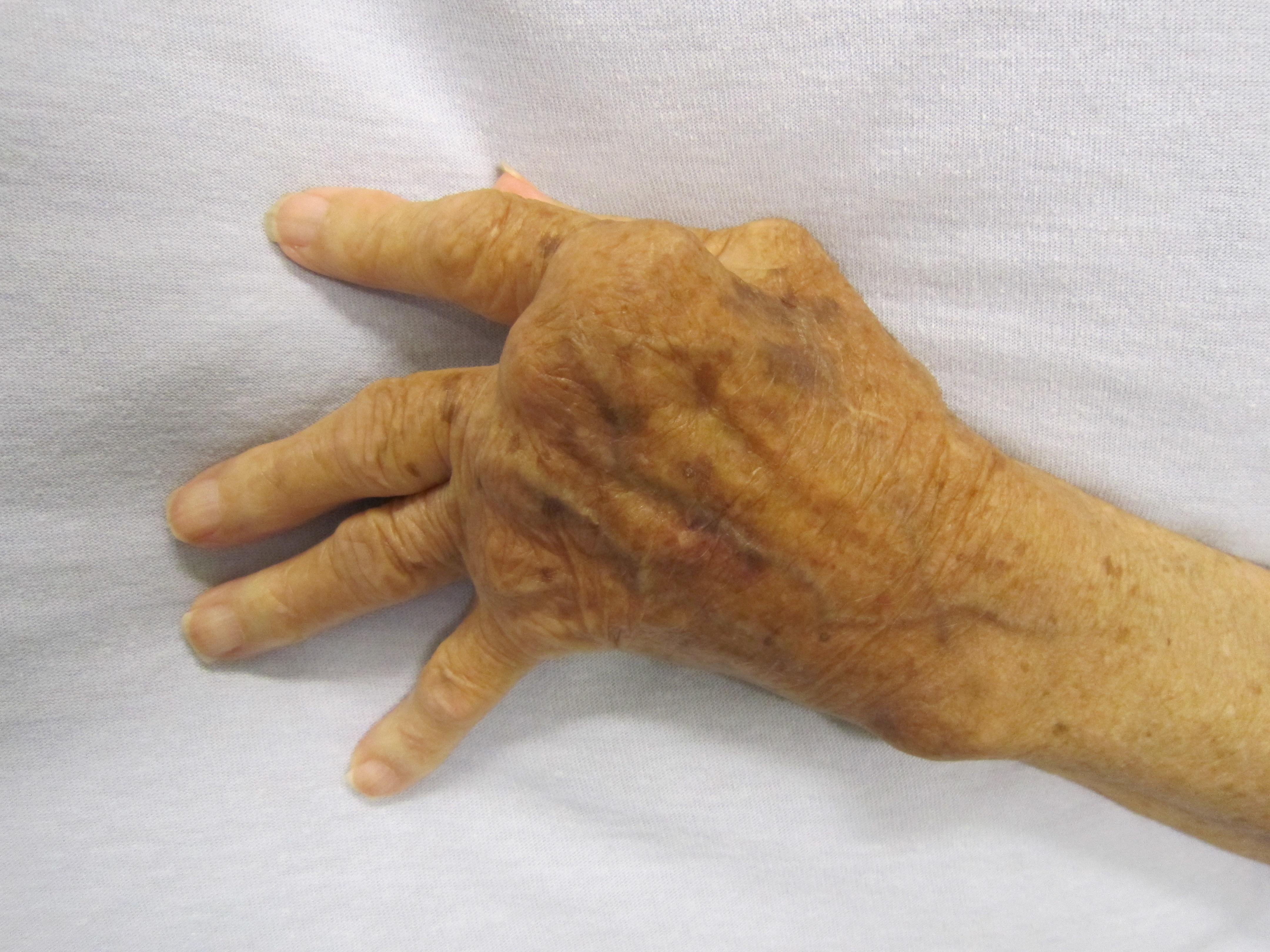 ízületi betegség, rheumatoid arthritis
