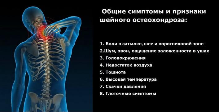 Az osteochondrosis tünetei, amelyeket nem tudtál