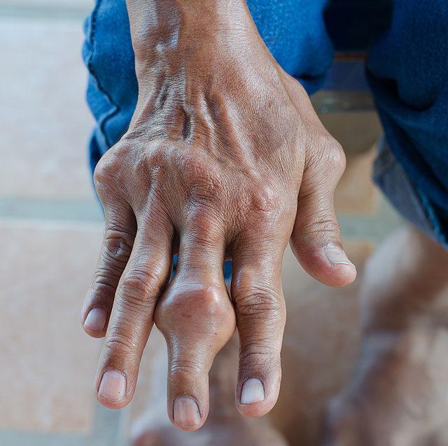 gyulladás a kéz ízületeiben