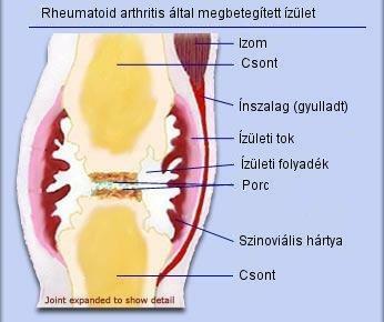 artrózis kezelési módszerek terápiás csípőízületek kezelése