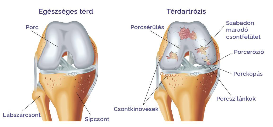 előadó az artrózis kezelésében