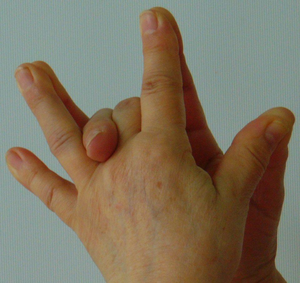 fájdalom a kéz falai ízületeiben
