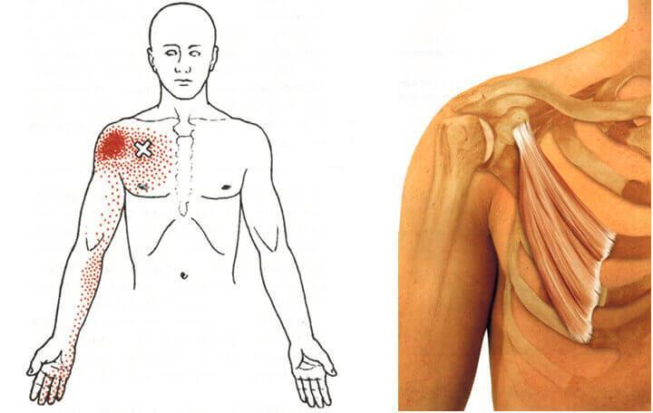 a nyaki vállízület ideges kezelése előkészületek az ízületre