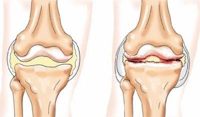 dagadt lábfájdalom az ízületben
