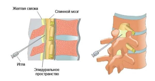 gyógyszerek a gerinc csontritkulásáért