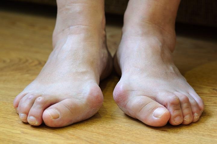 lábujjak és ízületek fájdalma