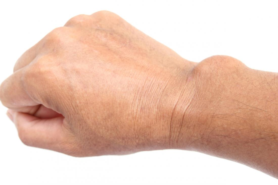 csukló ganglion kezelés