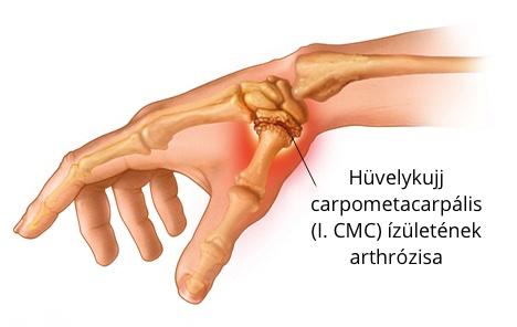 fájdalom a tenyér hüvelykujjának ízületeiben