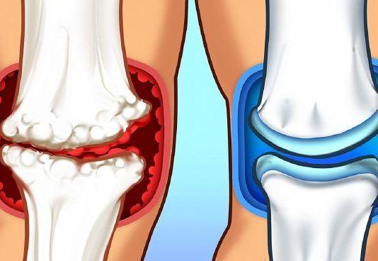 sport ízületi fájdalom