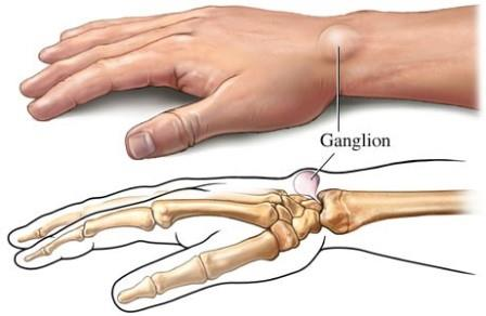 ízületi gyulladás után az ujjakon poszt-traumás artrózis 2 fokkal