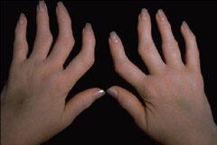 Kisízületi arthrosisok a kézen