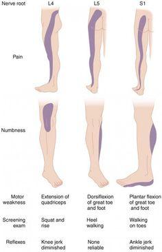 brachialis artrosis és ulnar kezelése
